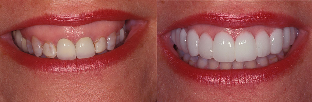Lip Reposition Before and After