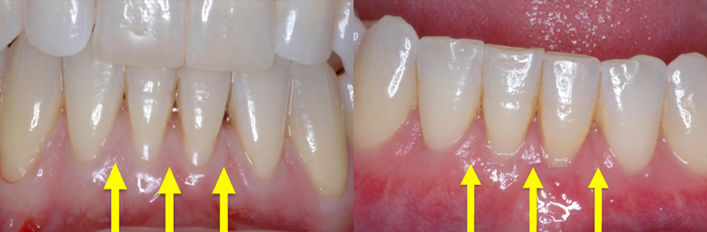 Before and After Papilla Reconstruction in Newport Beach, CA