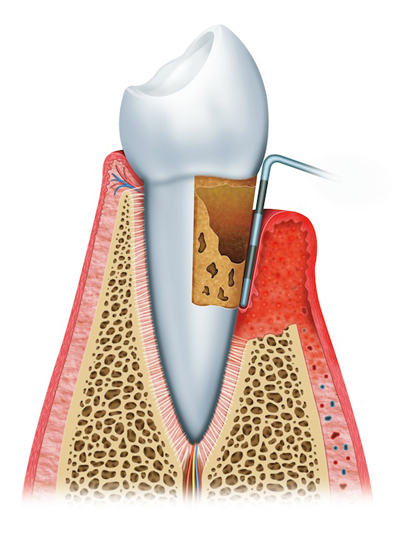 Stage 3: Advanced Periodontitis of Gum Disease Newport Beach, CA